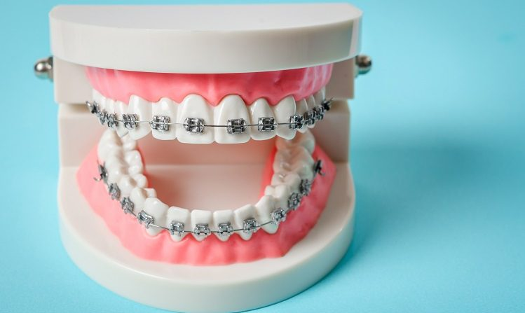 tooth model with metal wire dental braces