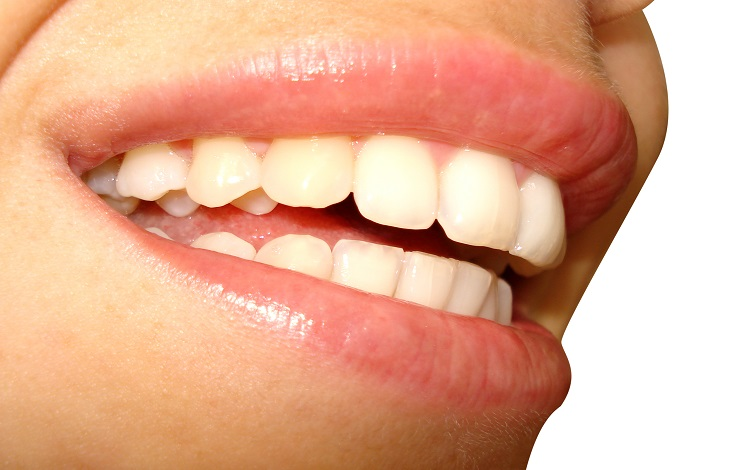 4 Reasons to Look After Your Teeth